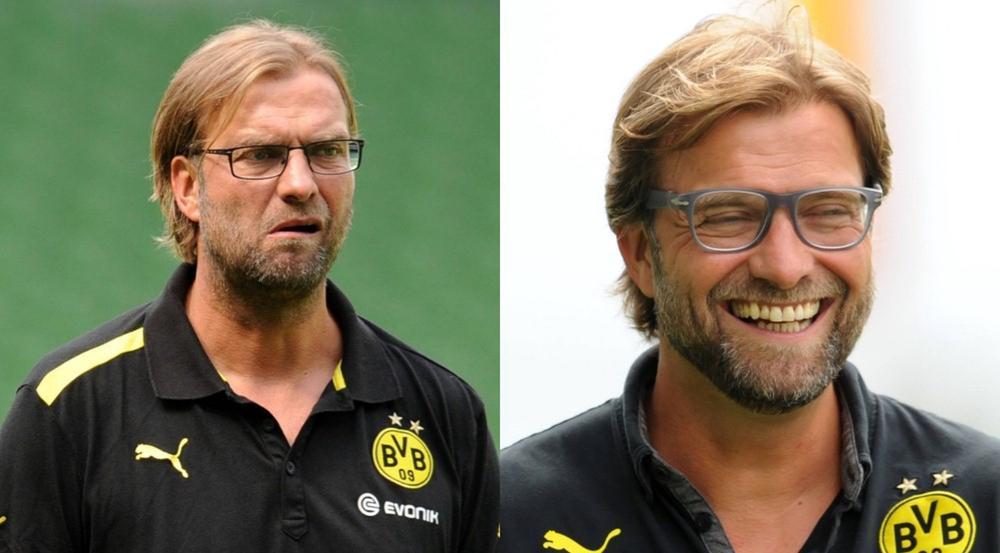 Jürgen Klopps Haaransatz sieht nach der Haartransplantation voller und gesünder aus