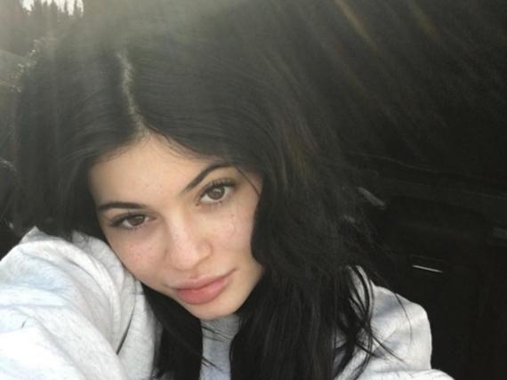 Ganz verschossen in ihre Sommersprossen: Kylie Jenner
