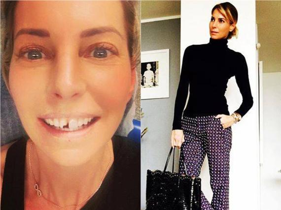 Giulia Siegel ging top gestylt zum Zahnarzt